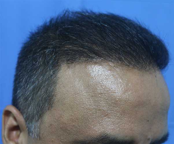 Hair%20Transplant%20Result%20-%20After%20Picture%20-Dr%20As%20Clinic%20%20R162%20(4)