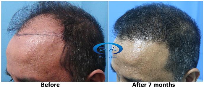 Hair%20Transplant%20Result%20-%20R162%20-%20drasclinic%20(5)