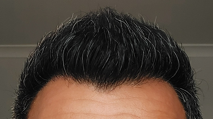 Hairline 6 Month