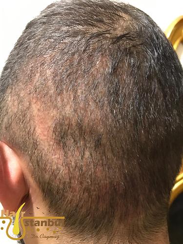 shock-hair-loss-3