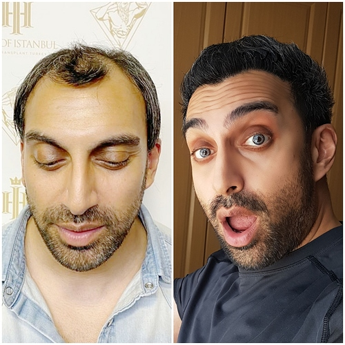 HOI Before After