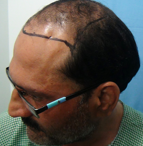 Hair%20Transplant%20Result%20-%20Before%20Picture%20-Dr%20As%20Clinic%20%20R159%20(4)