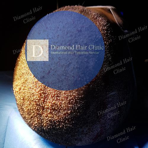 hair transplant turkey Istanbul fue DHI cost package reviews Dr.Mehmet Demircioglu Diamond Hair Clinic best hair transplant in _14