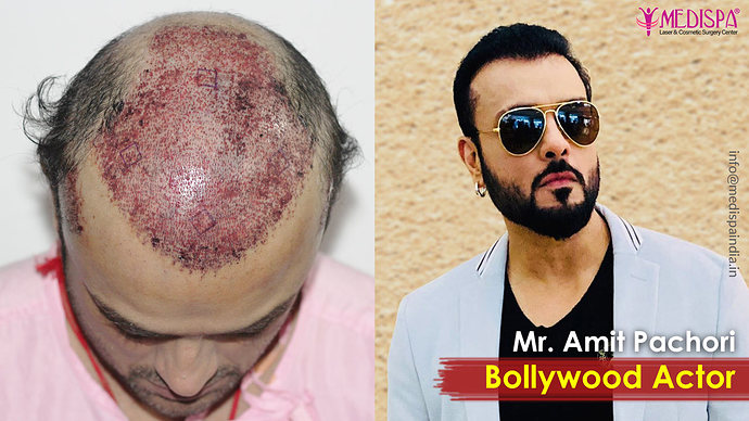 best-hair-transplant-results-in-india-1