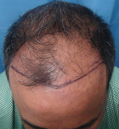 Hair%20Transplant%20Result%20-%20Before%20Picture%20-Dr%20As%20Clinic%20%20R162%20(3)