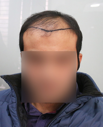 Hair Transplant Result A213 DR as clinic 1