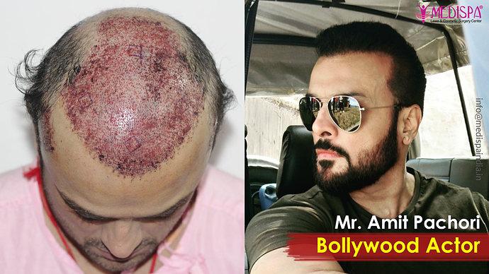 celebrity-hair-transplant-india-1