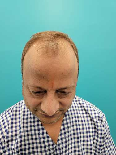 Rakesh Bansal Before