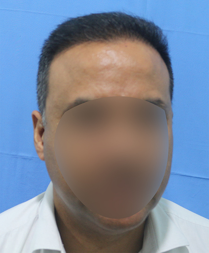 Hair%20Transplant%20Result%20-%20After%20Picture%20-Dr%20As%20Clinic%20%20R162%20(1)