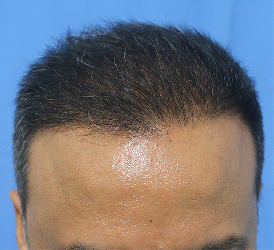Hair%20Transplant%20Result%20-%20After%20Picture%20-Dr%20As%20Clinic%20%20R162%20(2)