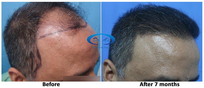 Hair%20Transplant%20Result%20-%20R162%20-%20drasclinic%20(4)