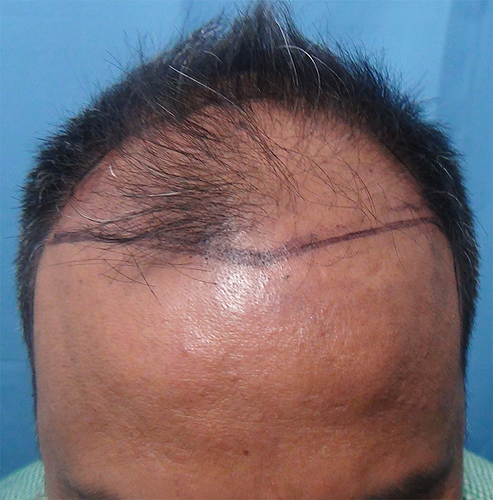 Hair%20Transplant%20Result%20-%20Before%20Picture%20-Dr%20As%20Clinic%20%20R162%20(2)