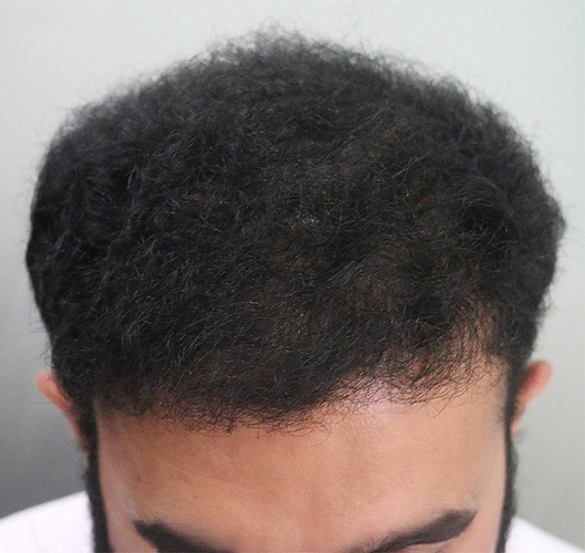 Hair%20Transplant%20Result%20-%20After%20Picture%20-Dr%20As%20Clinic%20%20A214%20(2)