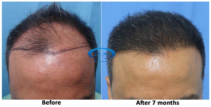 Hair%20Transplant%20Result%20-%20R162%20-%20drasclinic%20(2)
