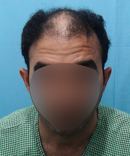 Hair%20Transplant%20Result%20-%20Before%20Picture%20-Dr%20As%20Clinic%20%20A214%20(1)