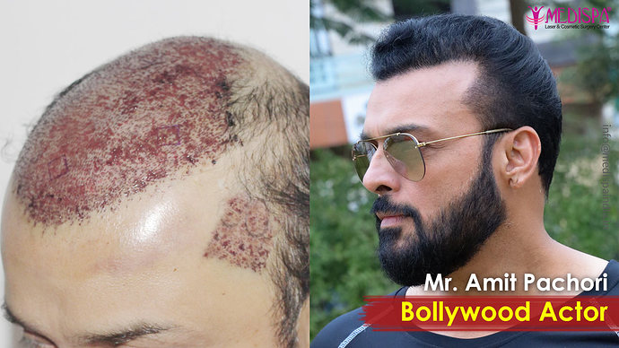 Actor-Amit-Pachori-Hair-Transplant-Results-1