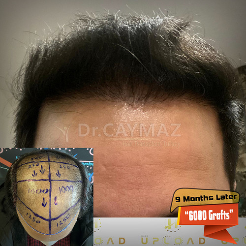 6000-grafts-9-months-later-2