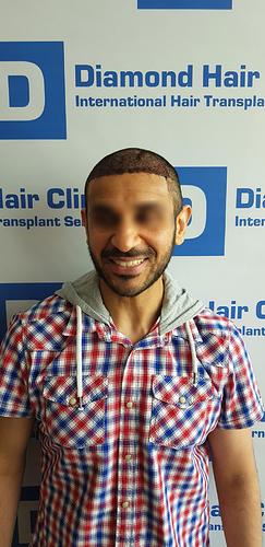 hair transplant turkey Istanbul fue DHI cost package reviews Dr.Mehmet Demircioglu Diamond Hair Clinic best hair transplant in _16