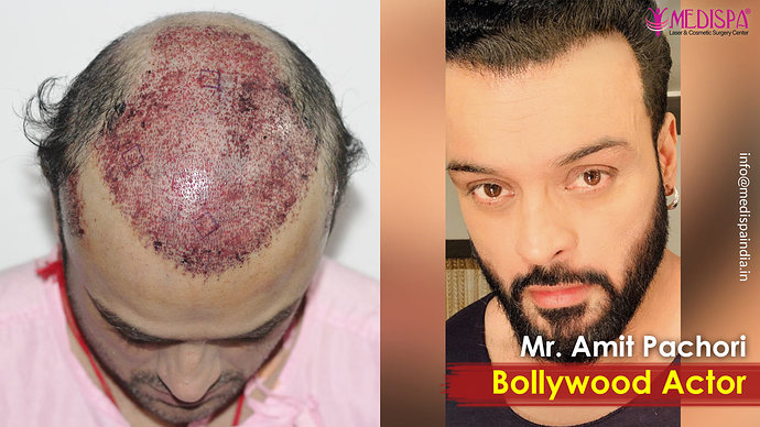 bolywood-actor-hair-transplant-india-1