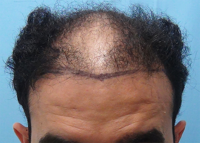 Hair%20Transplant%20Result%20-%20Before%20Picture%20-Dr%20As%20Clinic%20%20A214%20(2)