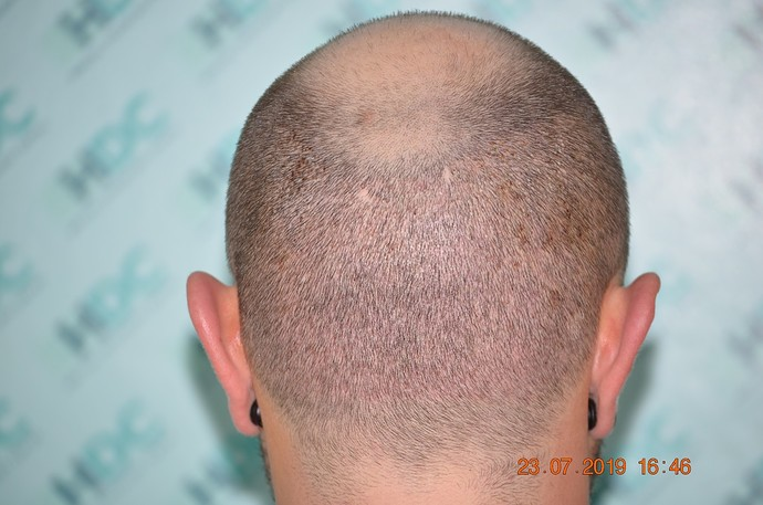 9 -Donor post op FUE1 for 4180 grafts - 6 days after