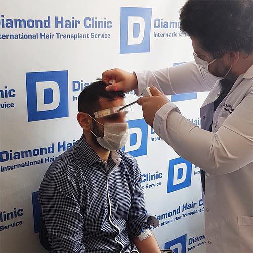 hair transplant turkey Istanbul fue DHI cost package reviews Dr.Mehmet Demircioglu Diamond Hair Clinic best hair transplant in _04