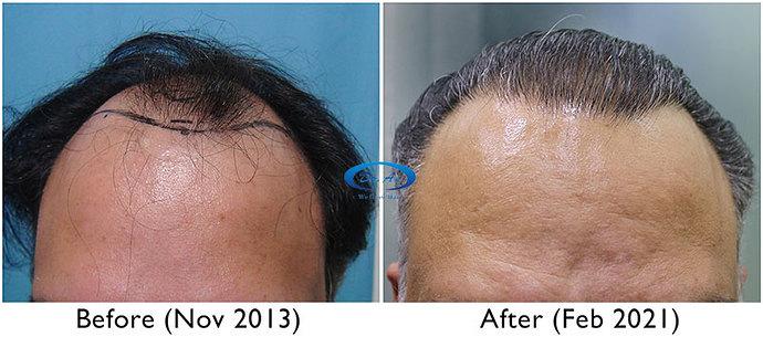A230 - Hair Transplant Result - DrAsClinic (3)