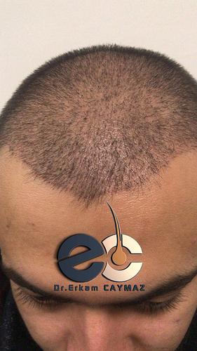 bf-5-dr-erkam-caymaz-hair-istanbul