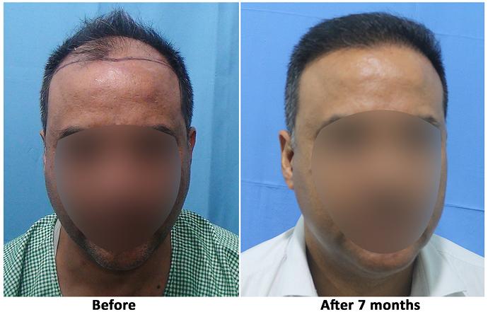 Hair%20Transplant%20Result%20-%20R162%20-%20drasclinic%20(1)