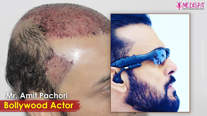 actor-hair-transplant-results-india-1