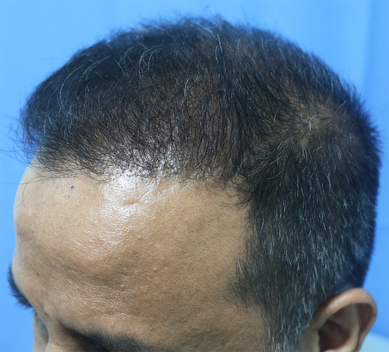 Hair%20Transplant%20Result%20-%20After%20Picture%20-Dr%20As%20Clinic%20%20R162%20(5)