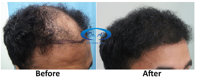 Hair Transplant Result Dr As Clinic  A214 (3)