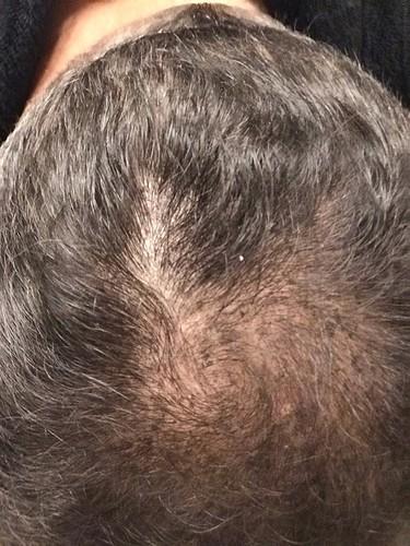 Hair April-21