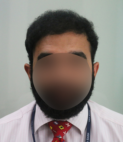 Hair%20Transplant%20Result%20-%20After%20Picture%20-Dr%20As%20Clinic%20%20A214%20(1)