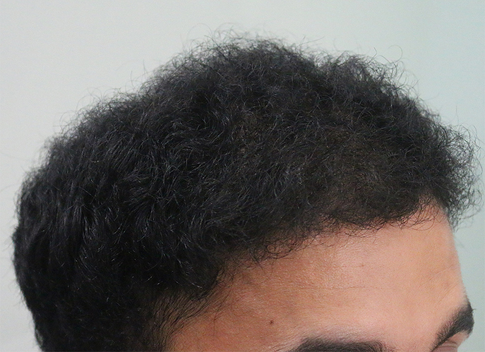 Hair%20Transplant%20Result%20-%20After%20Picture%20-Dr%20As%20Clinic%20%20A214%20(3)