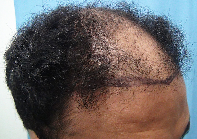 Hair%20Transplant%20Result%20-%20Before%20Picture%20-Dr%20As%20Clinic%20%20A214%20(3)