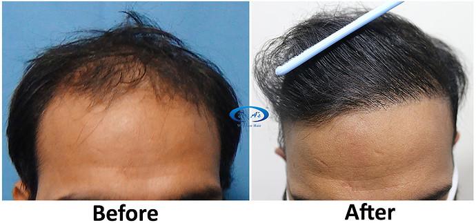 A228 - Hair Transplant Result - DrAsClinic (1)