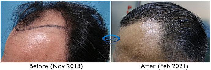 A230 - Hair Transplant Result - DrAsClinic (2)