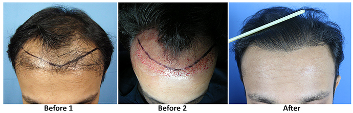 Hair Transplant result Dr As Clinic