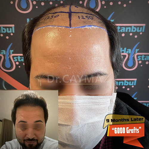 6000-grafts-9-months-later-3