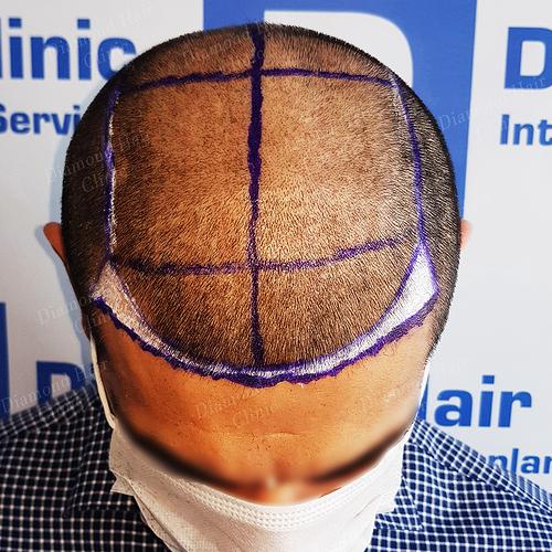 hair transplant turkey Istanbul fue DHI cost package reviews Dr.Mehmet Demircioglu Diamond Hair Clinic best hair transplant in _08