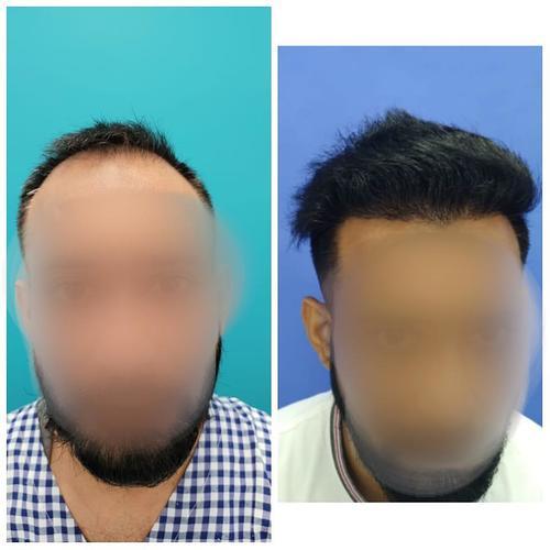 Gaurav Sarna Before and After