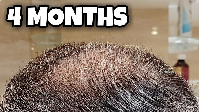 4 Months Crown