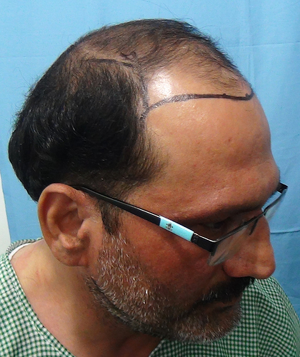 Hair%20Transplant%20Result%20-%20Before%20Picture%20-Dr%20As%20Clinic%20%20R159%20(3)