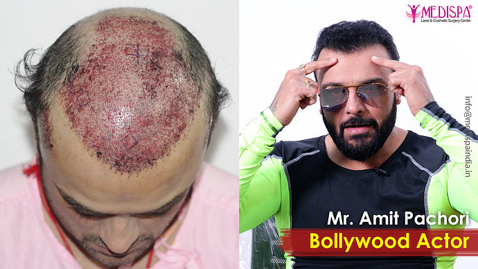 celebrity-hair-transplant-rajasthan