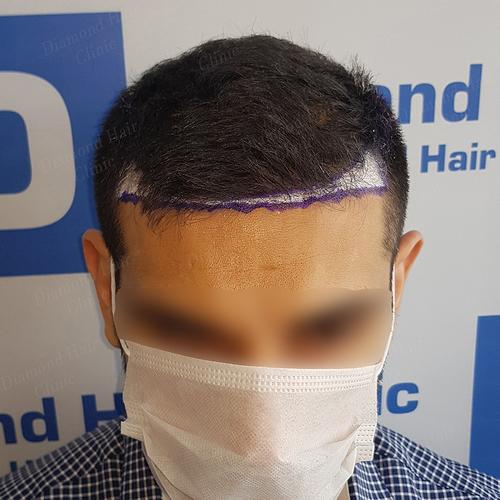 hair transplant turkey Istanbul fue DHI cost package reviews Dr.Mehmet Demircioglu Diamond Hair Clinic best hair transplant in _05