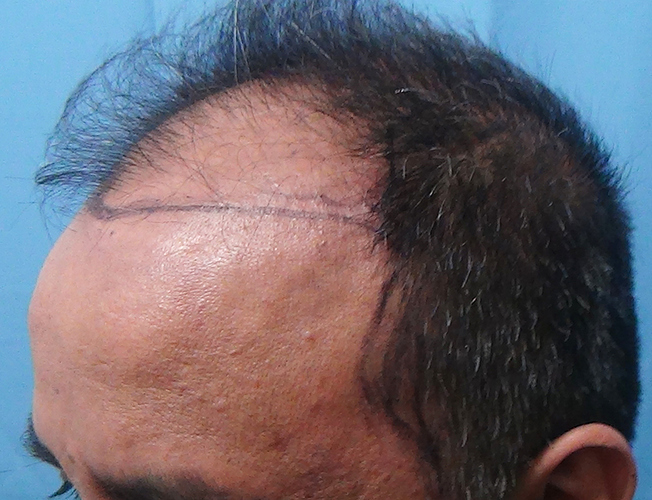 Hair%20Transplant%20Result%20-%20Before%20Picture%20-Dr%20As%20Clinic%20%20R162%20(5)