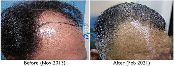 A230 - Hair Transplant Result - DrAsClinic (1)