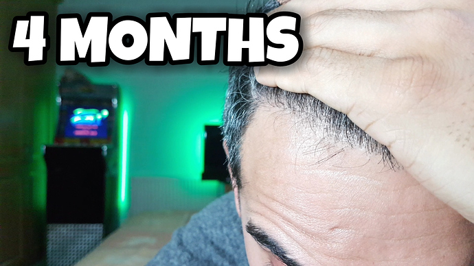 4 Months Hairline