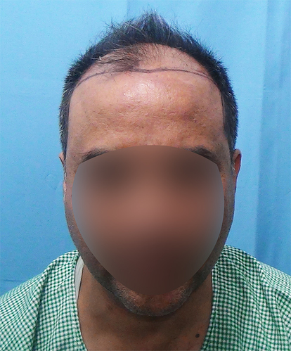 Hair%20Transplant%20Result%20-%20Before%20Picture%20-Dr%20As%20Clinic%20%20R162%20(1)